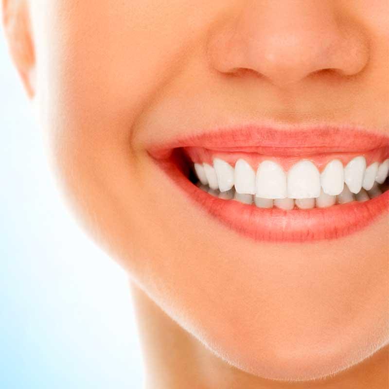 Che cos'è lo sbiancamento dentale