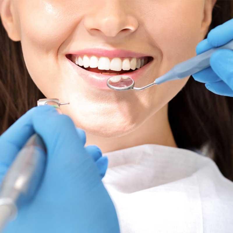 Quali sono i rischi dello sbiancamento dentale?