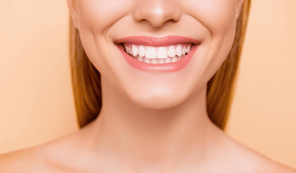 rimedi naturali sbiancamento dentale