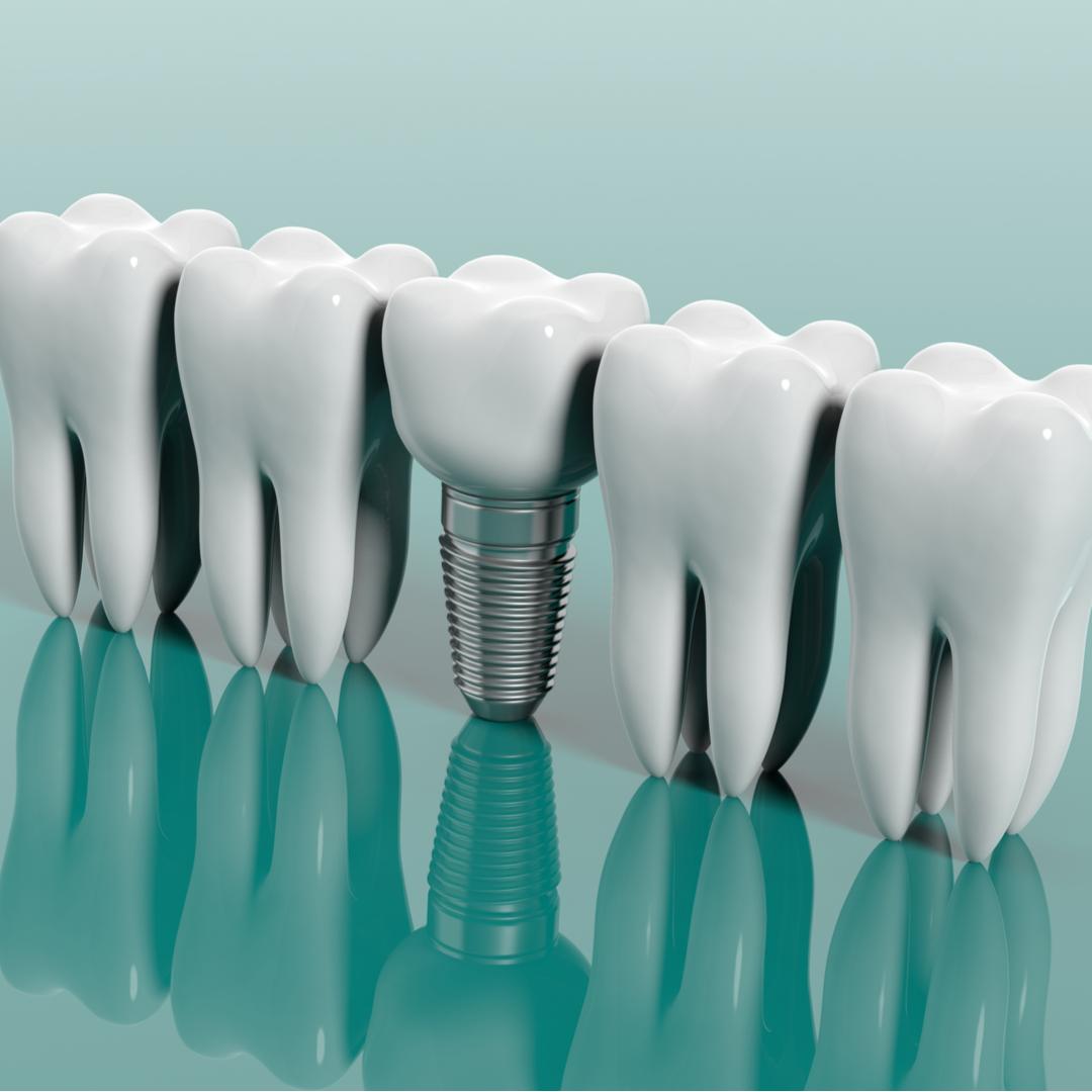Come avviene la ricostruzione di un dente o della dentatura
