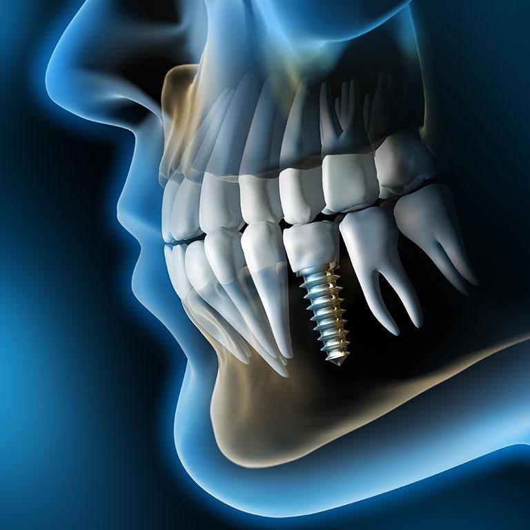 Chirurgia orale: quando serve e i vantaggi