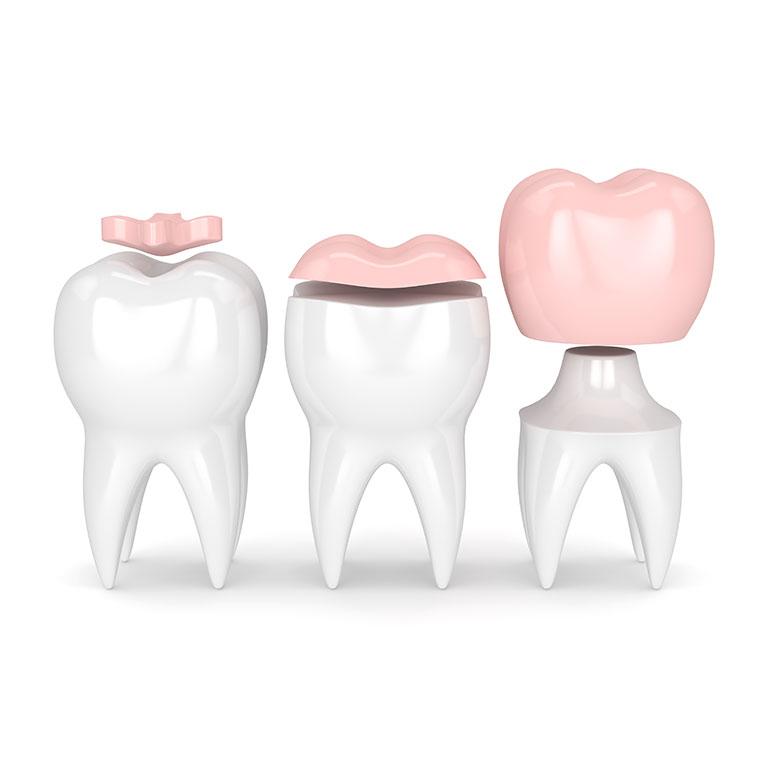 Cosa sono le corone dentali CAD/CAM?