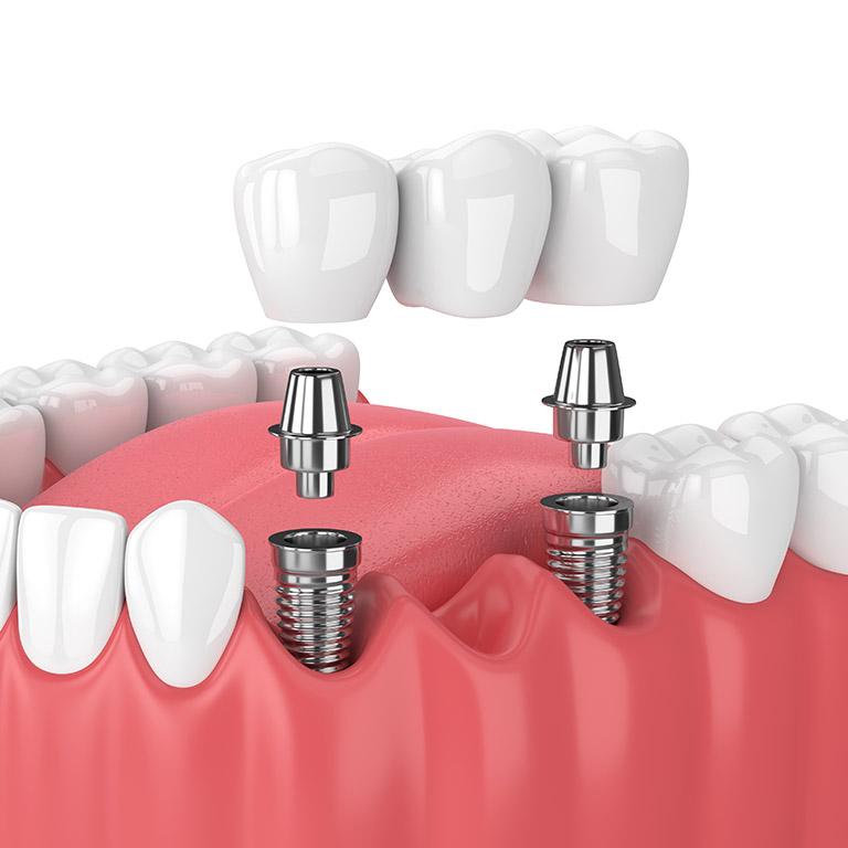 L'implantologia dentale per ritrovare un sorriso naturale