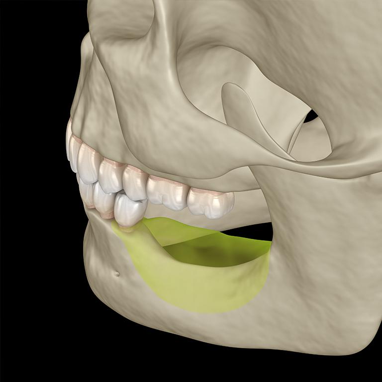 Tecniche di rigenerazione ossea: cosa sono e quando si utilizzano
