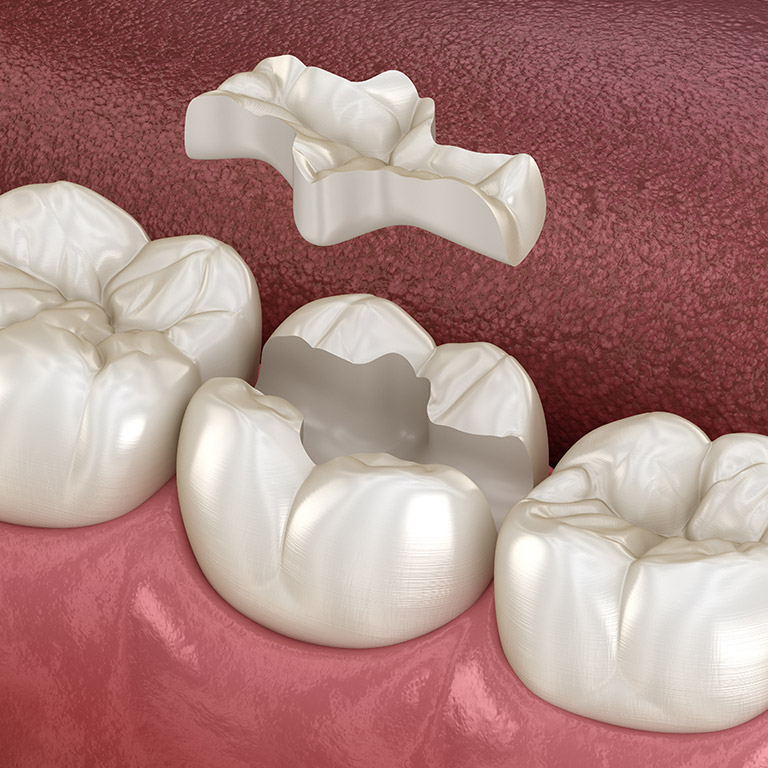 Intarsi dentali: cosa sono e quali vantaggi offrono